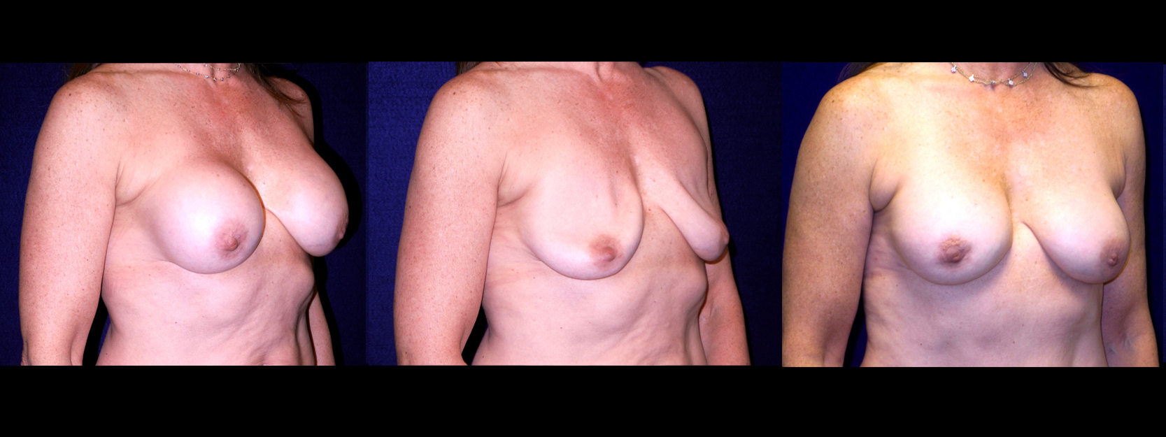 Right 3/4 View - Implant Revision - Contracted Saline, Deflated, Replaced with Silicone Implants