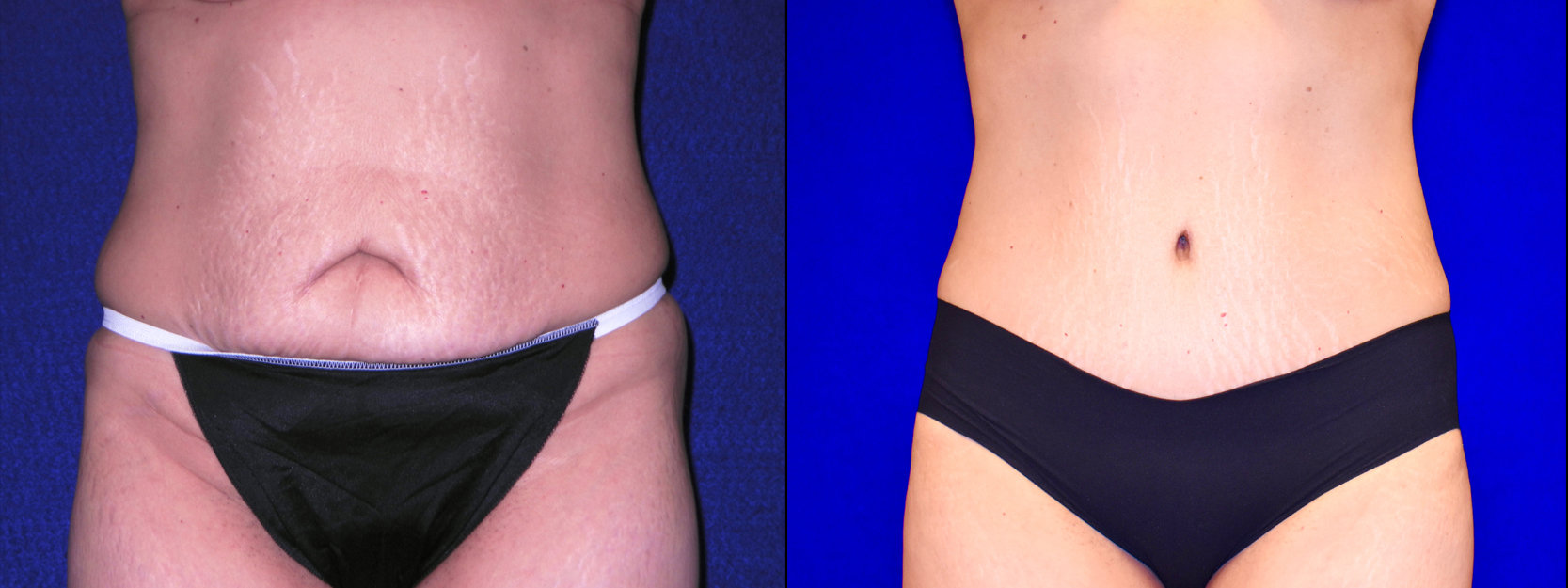Frontal View - Tummy Tuck