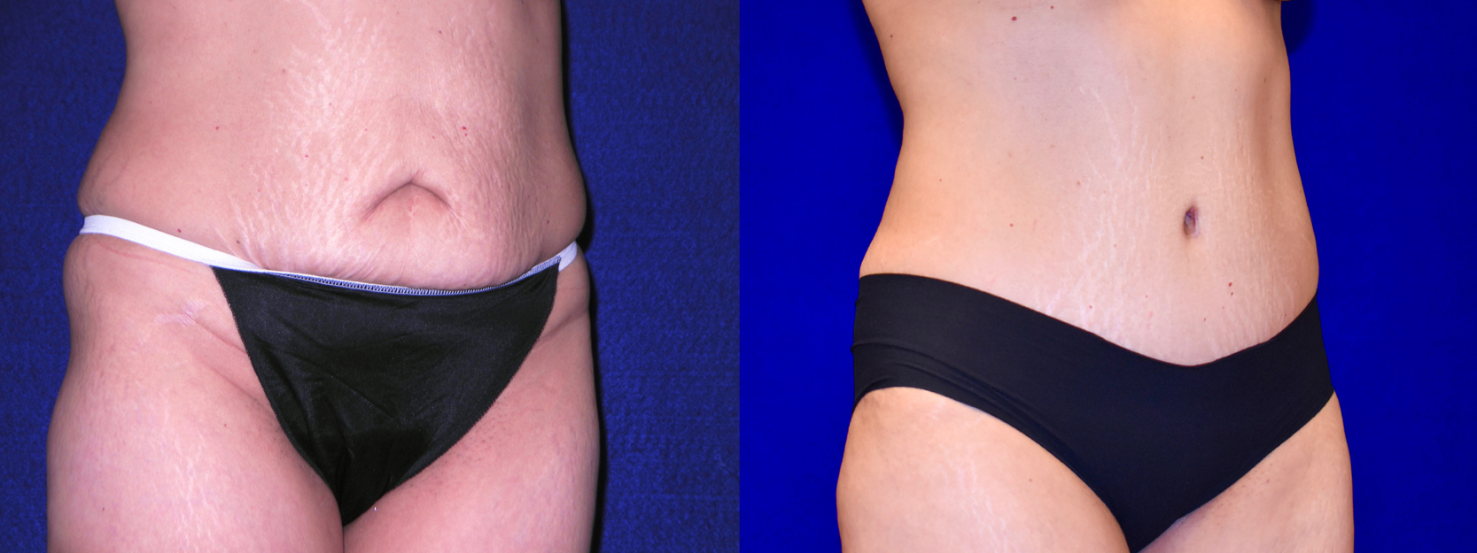 Right 3/4 View - Tummy Tuck