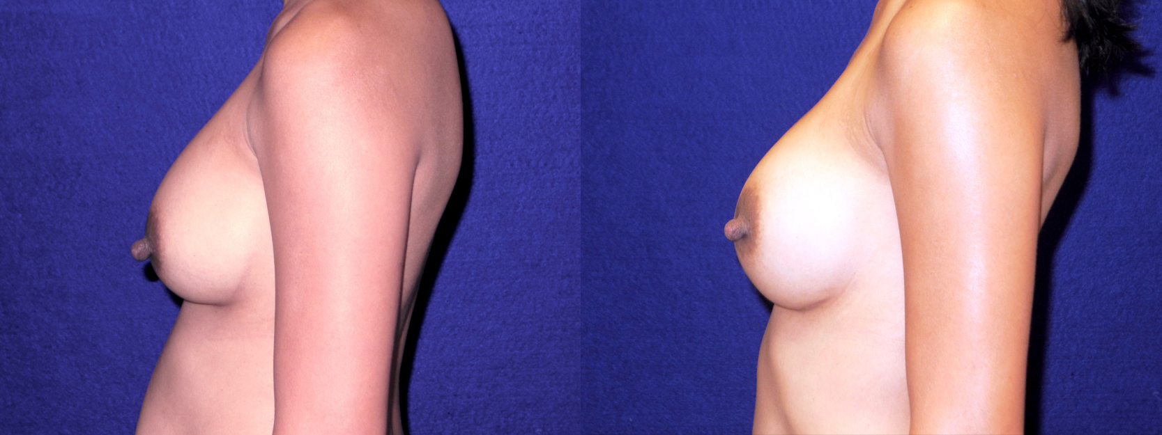 Left Profile View - Breast Implant Revision
