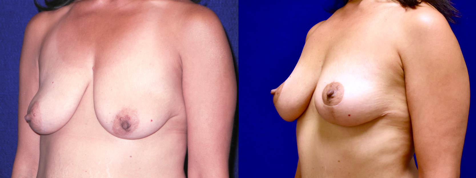 Left 3/4 View - Breast Lift