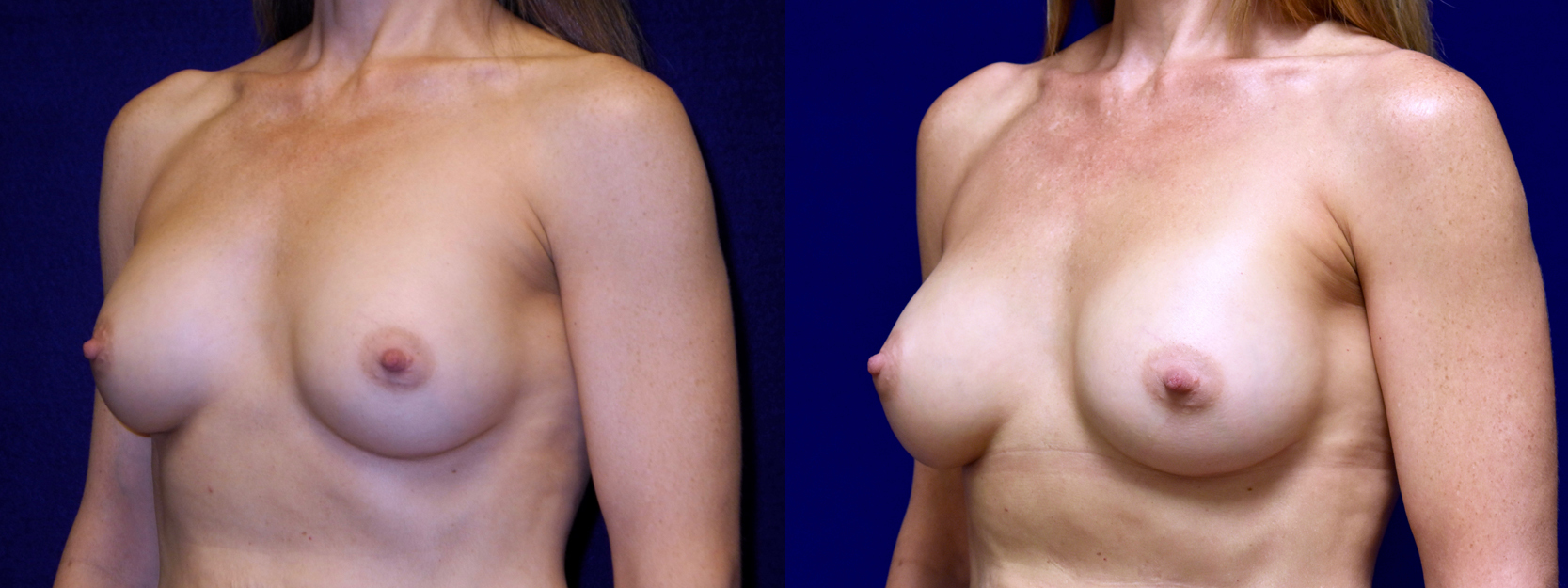 Left 3/4 View - Breast Implant Revision