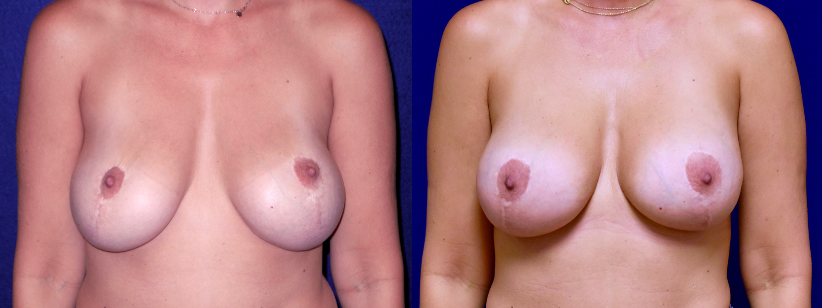 Frontal View - Breast Implant Revision