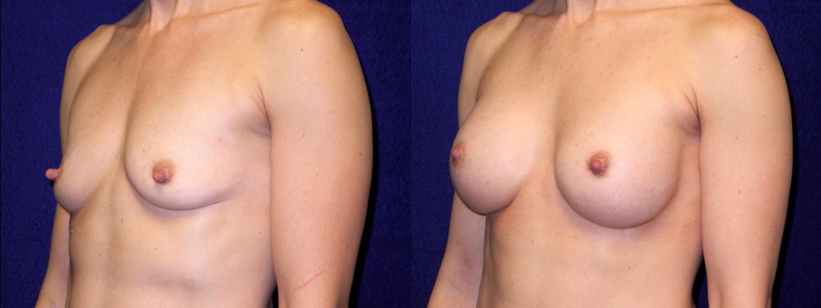 Left 3/4 View - Breast Augmentation