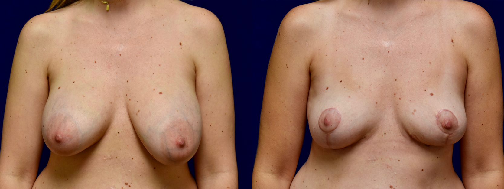 Frontal View - Breast Implant Removal with Breast Lift