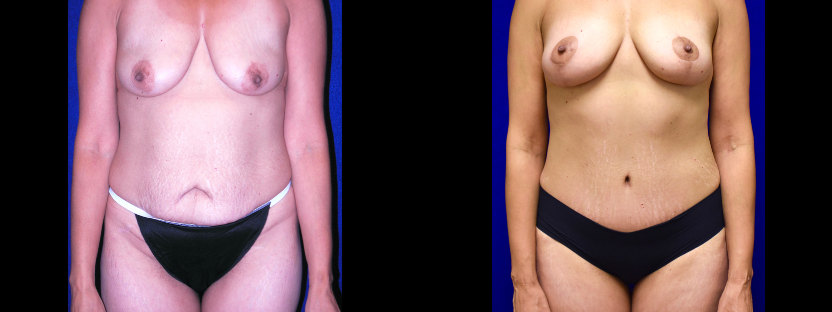 Frontal View - Tummy Tuck with Breast Lift
