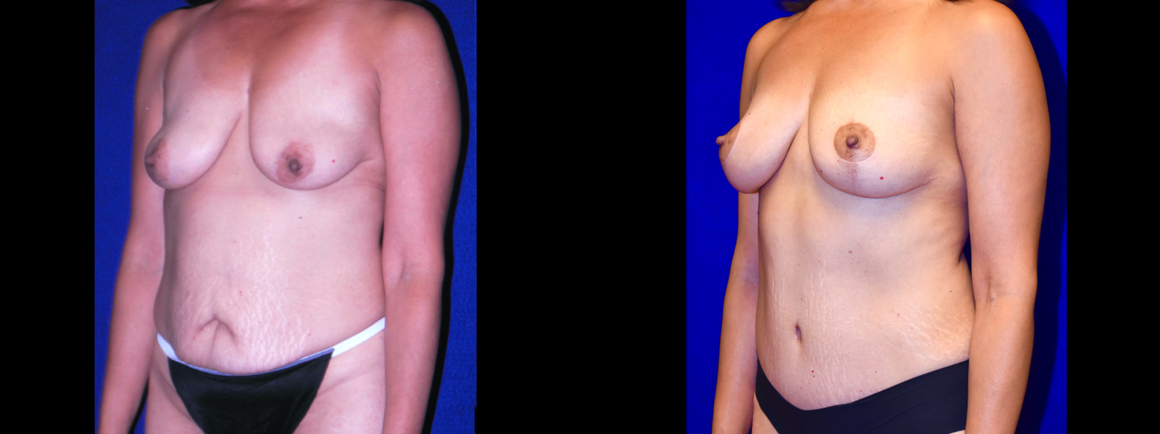 Left 3/4 View - Tummy Tuck with Breast Lift