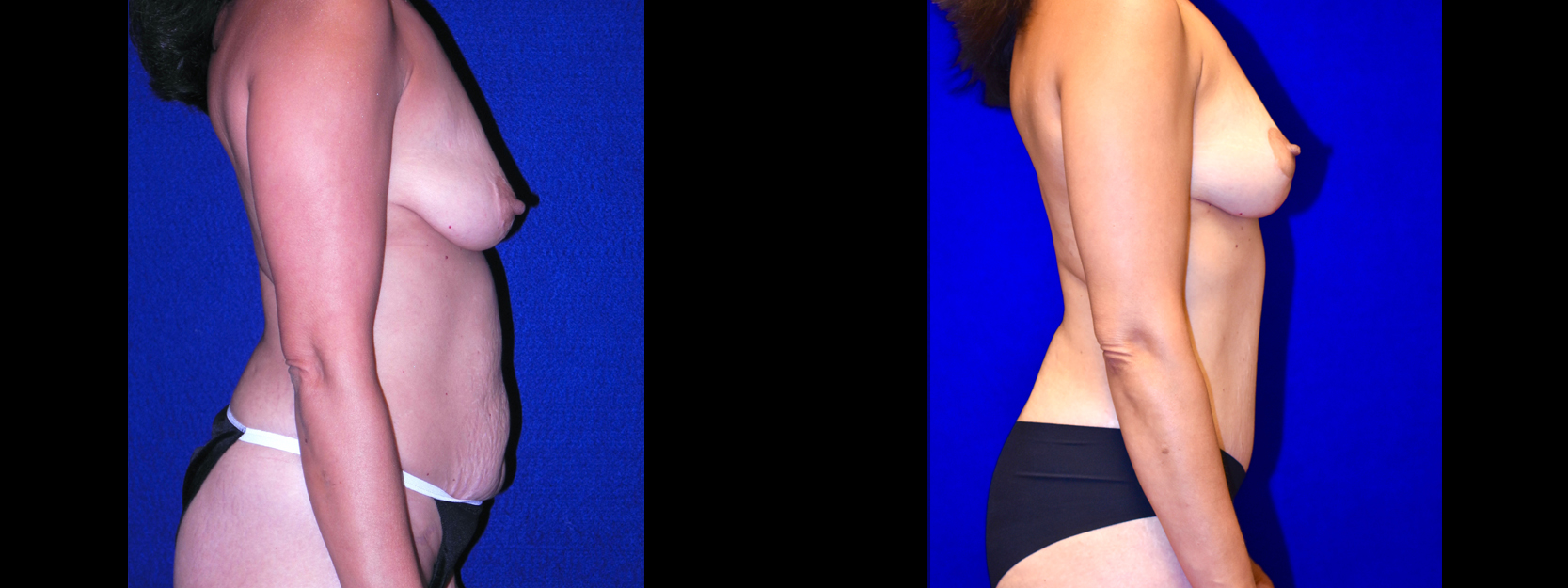 Right Profile View - Tummy Tuck with Breast Lift
