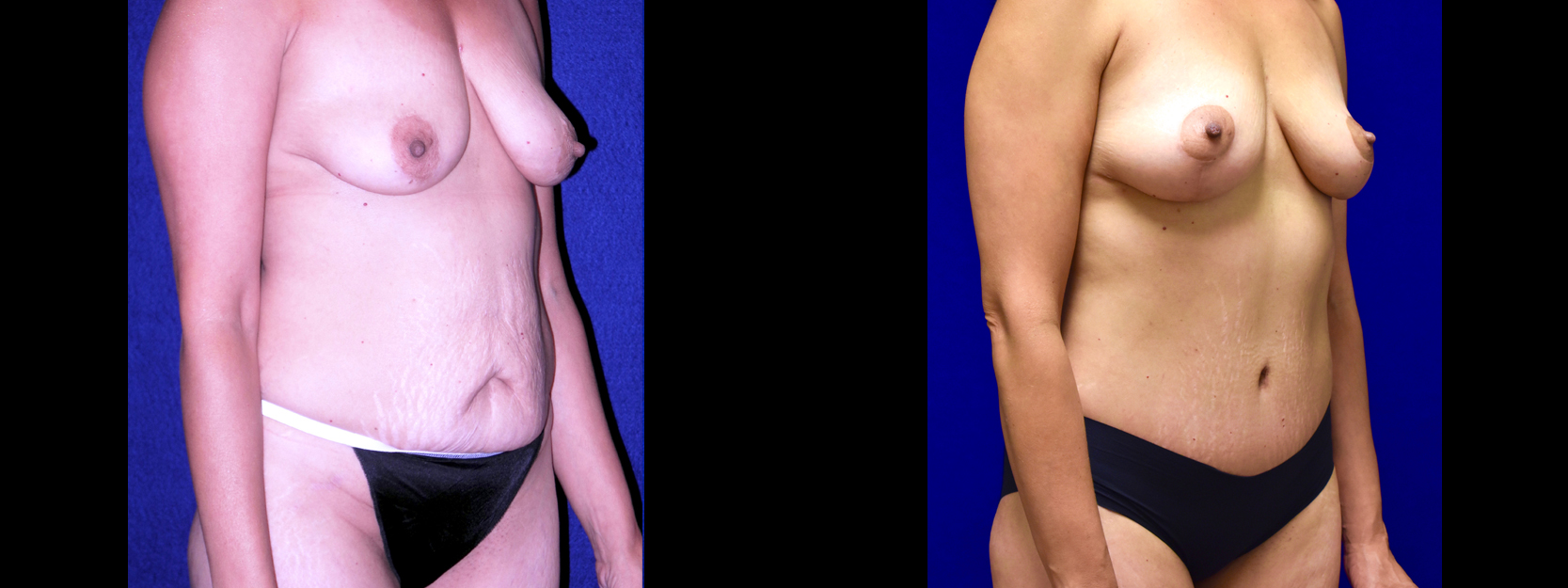 Right 3/4 View - Tummy Tuck with Breast Lift