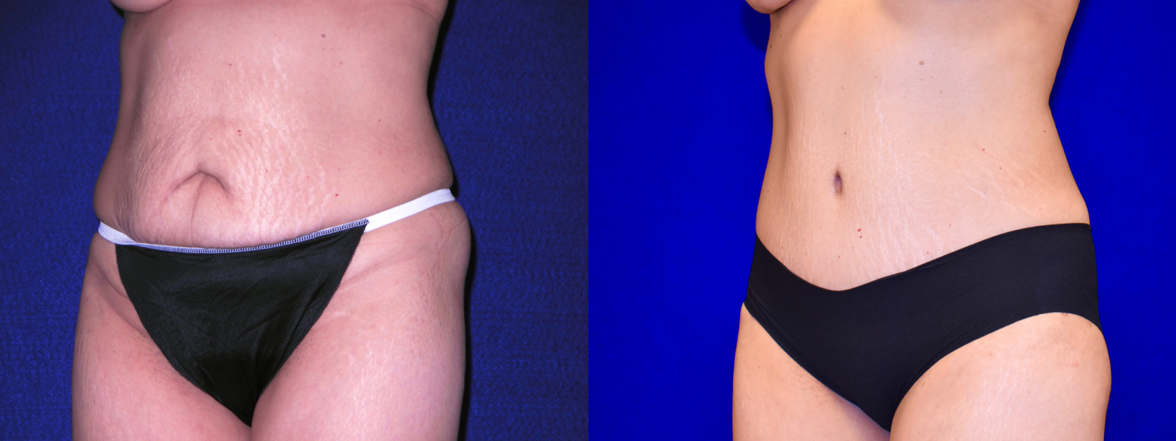 Left 3/4 View - Tummy Tuck
