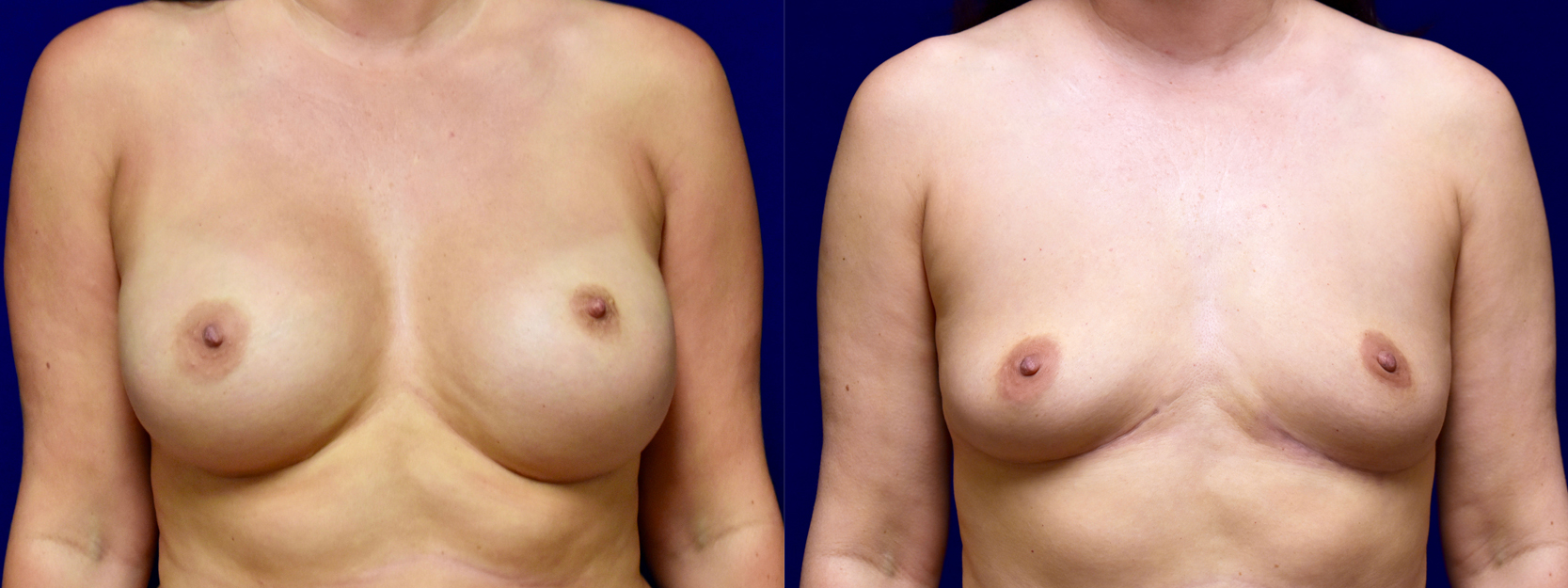 Frontal View - Breast Implant Removal