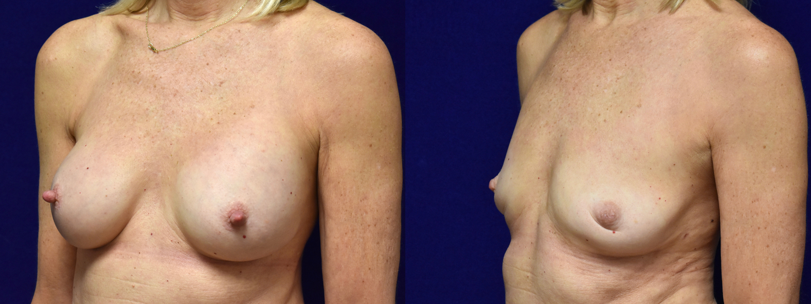 Left 3/4 View - Breast Implant Removal