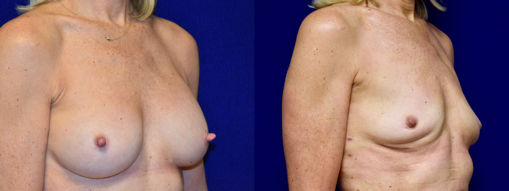 Right 3/4 View - Breast Implant Removal