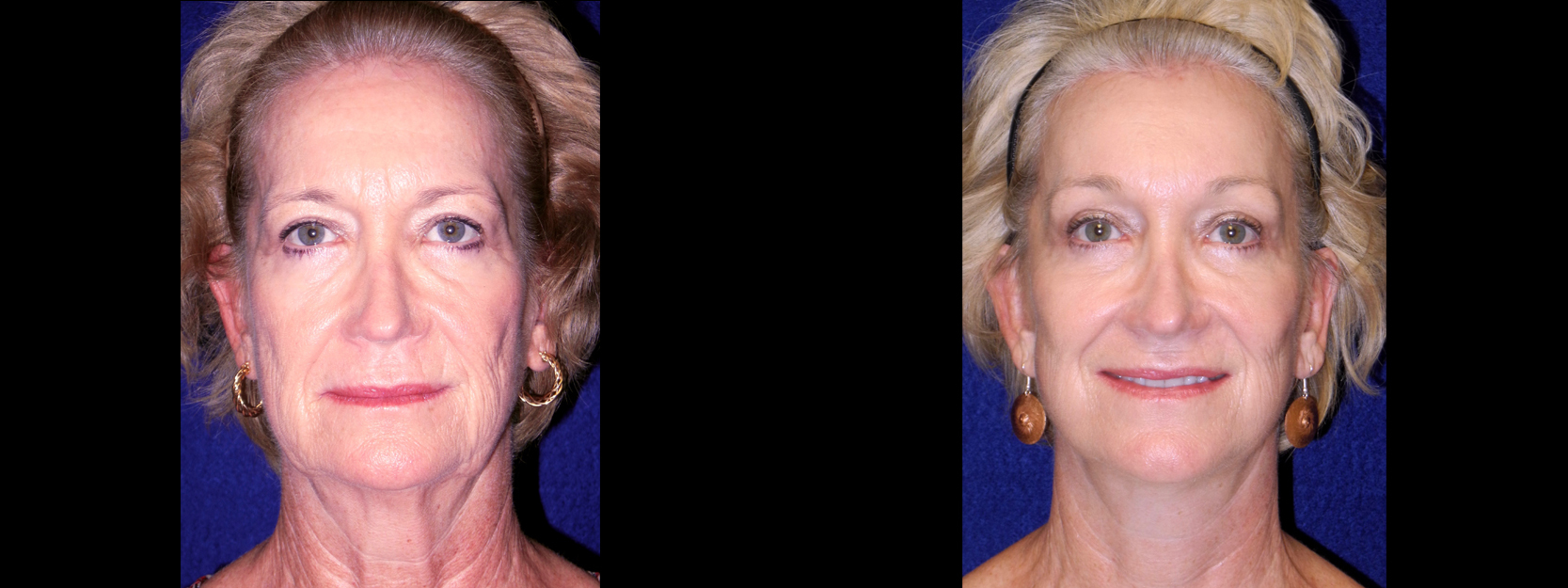 Frontal View - Facelift with Browlift