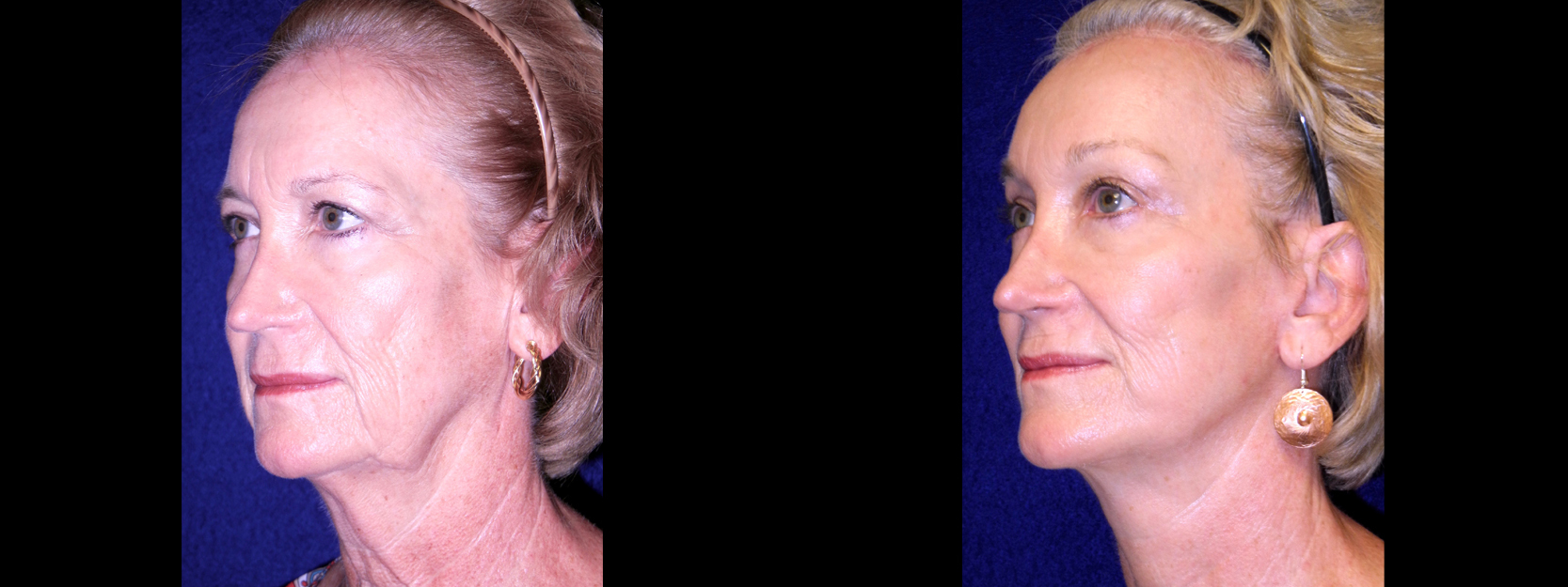Left 3/4 View - Facelift with Browlift