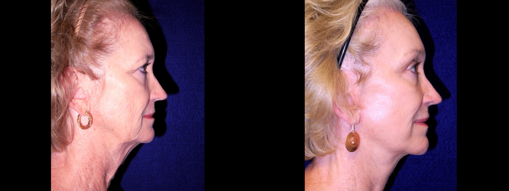 Right Profile View - Facelift with Browlift