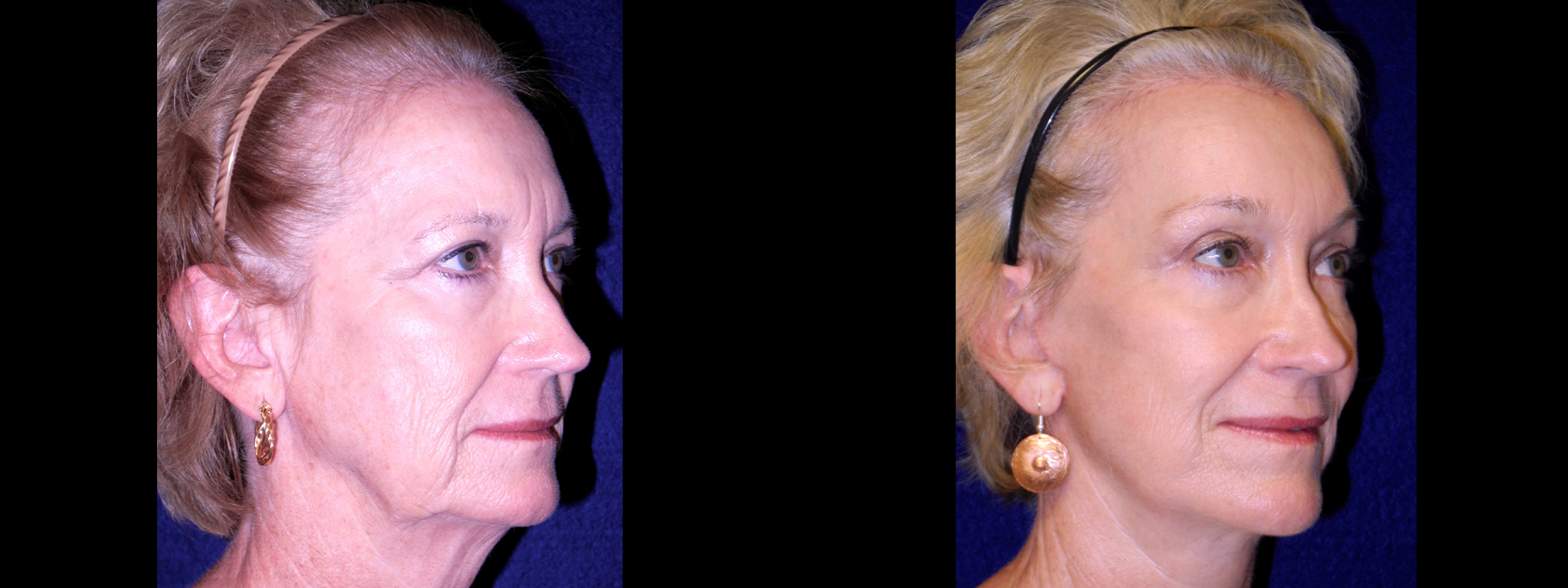Right 3/4 View - Facelift with Browlift