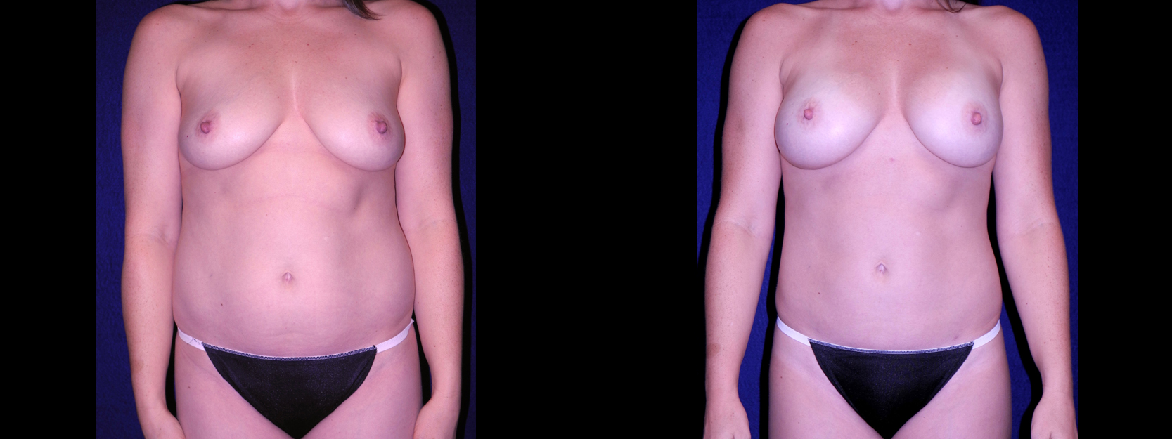 Frontal View - Tummy Tuck with Breast Augmentation