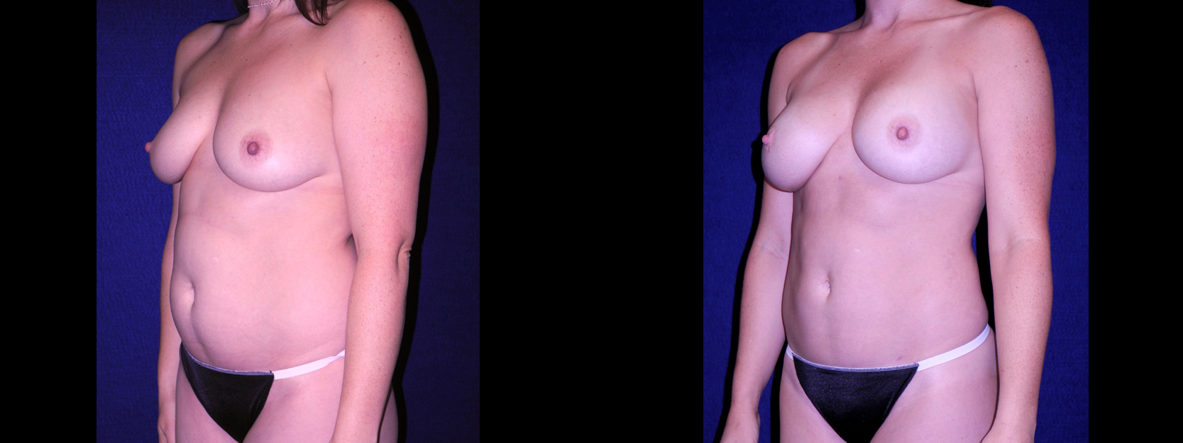 Left 3/4 View - Tummy Tuck with Breast Augmentation