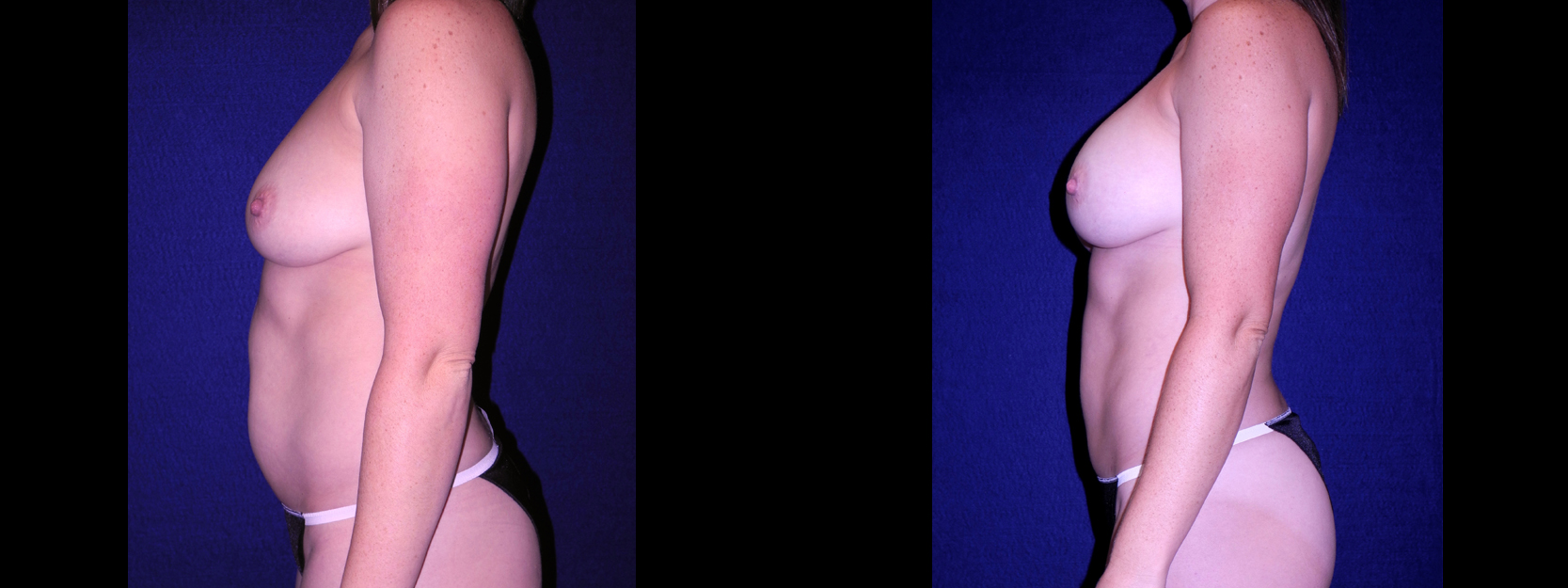 Left Profile View - Tummy Tuck with Breast Augmentation