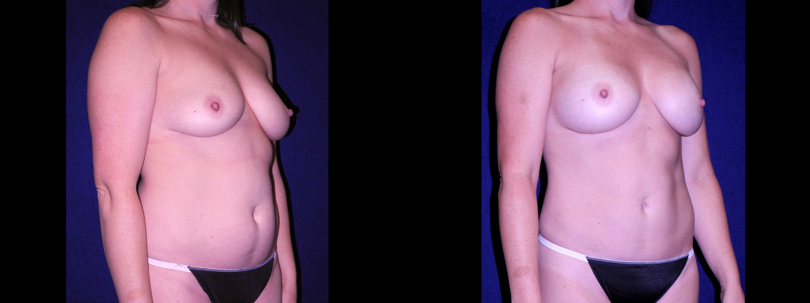 Right 3/4 View - Tummy Tuck with Breast Augmentation