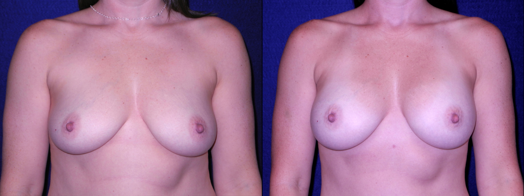 Frontal View - Breast Augmentation