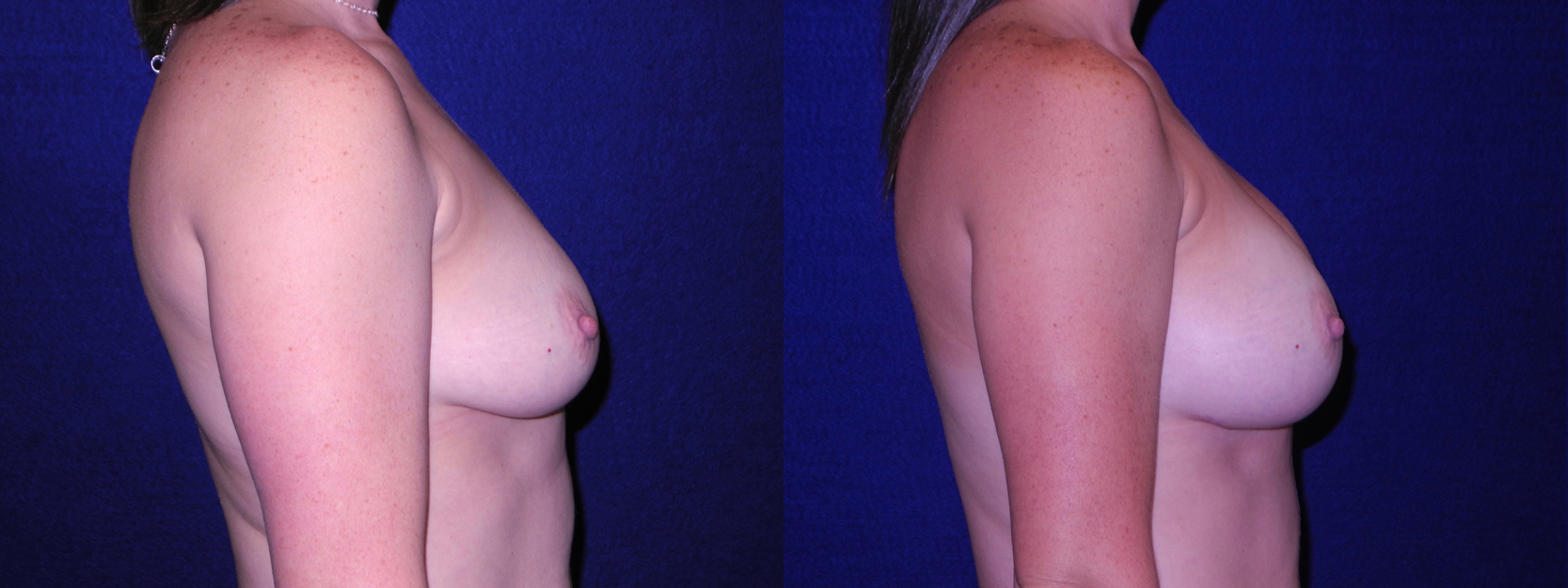 Right Profile View - Breast Augmentation