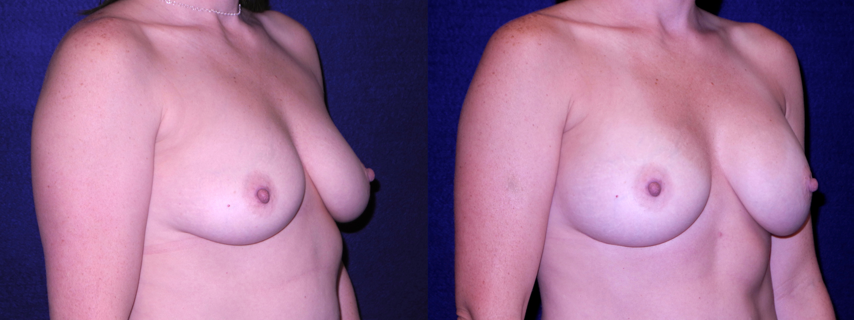 Right 3/4 View - Breast Augmentation