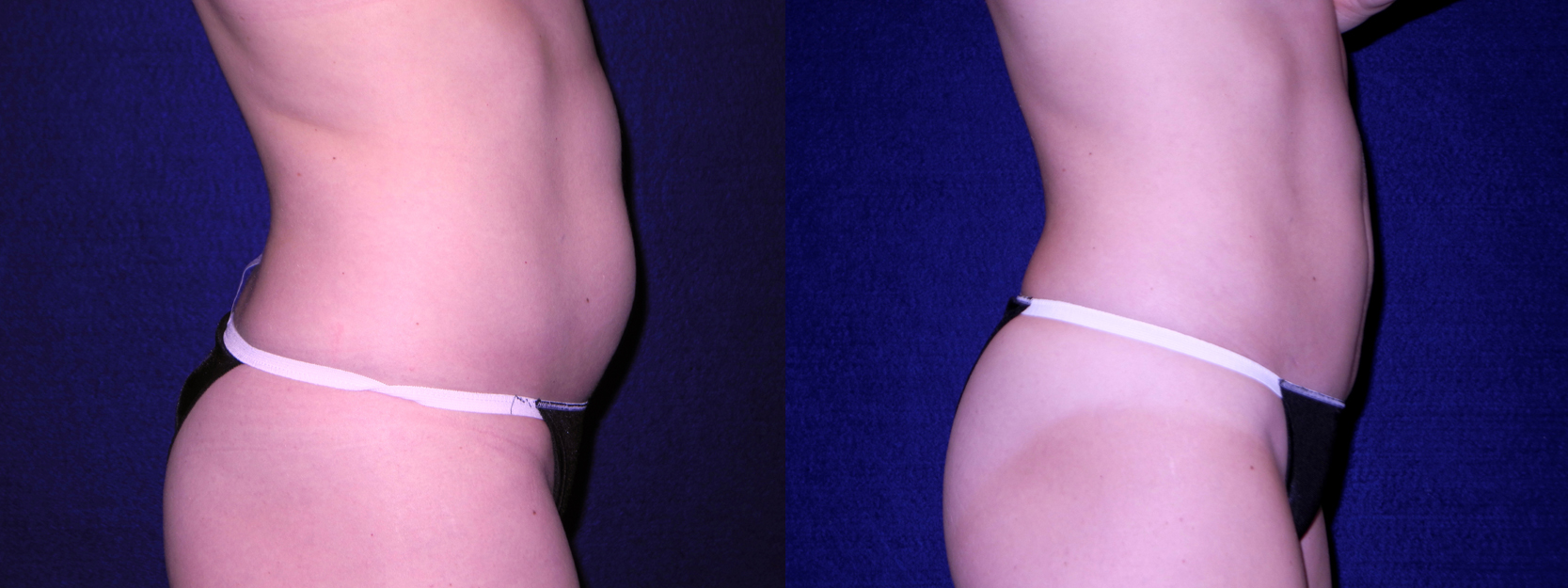 Right Profile View - Tummy Tuck