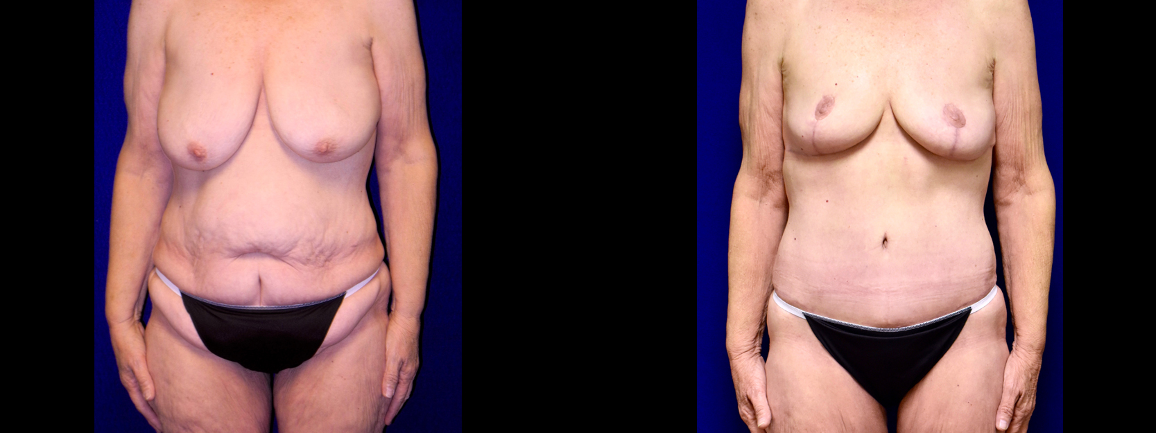 Frontal View - Extended Tummy Tuck with Breast Reduction
