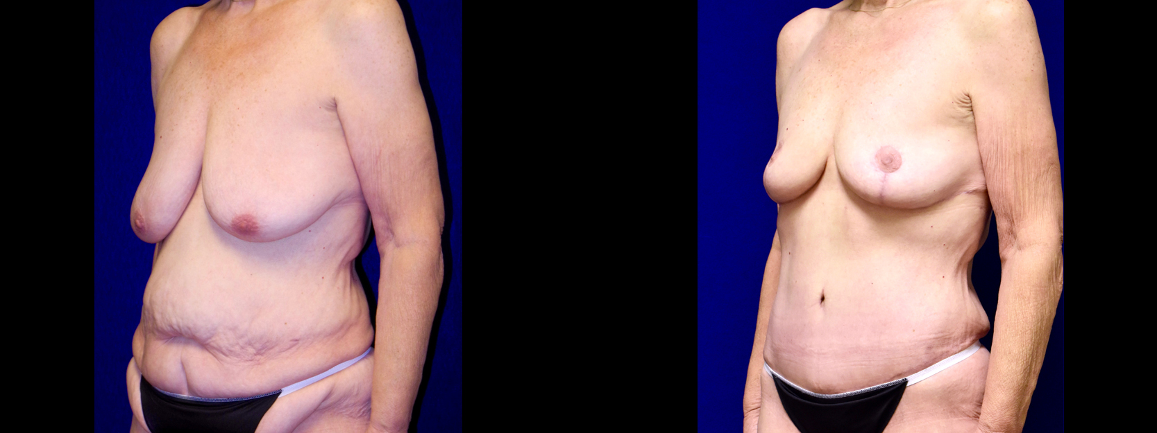 Left 3/4 View - Extended Tummy Tuck with Breast Reduction