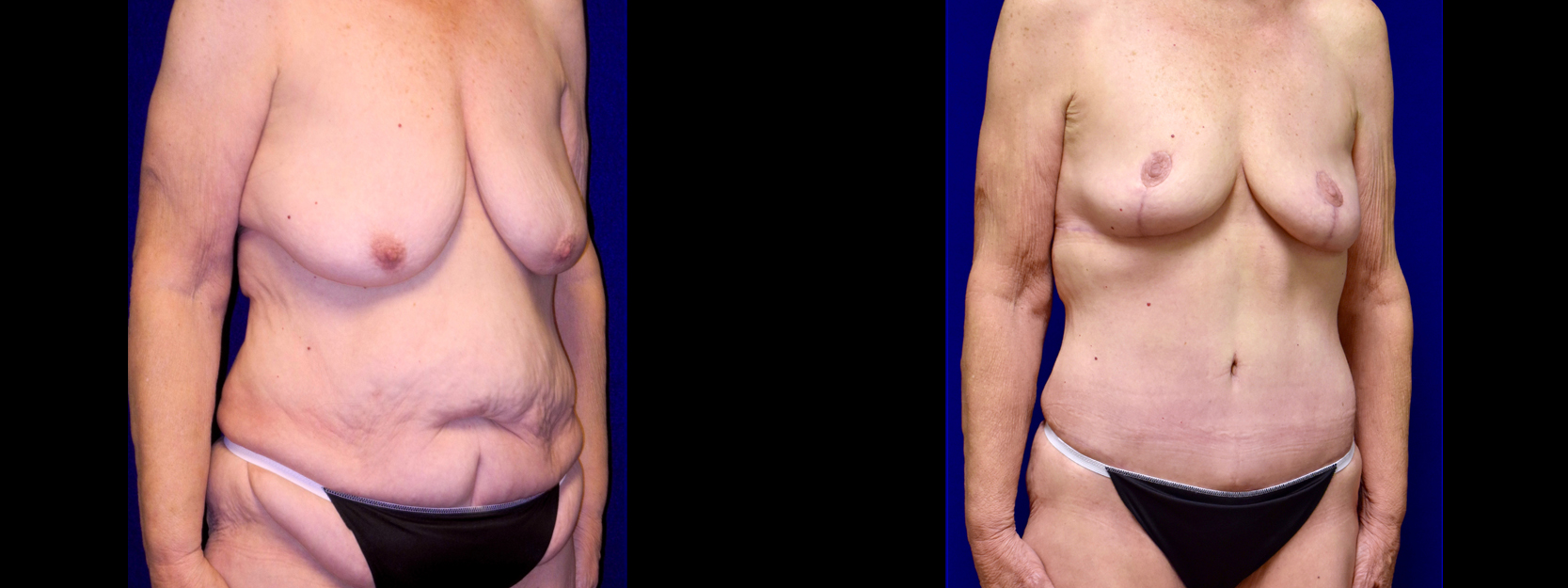 Right 3/4 View - Extended Tummy Tuck with Breast Reduction