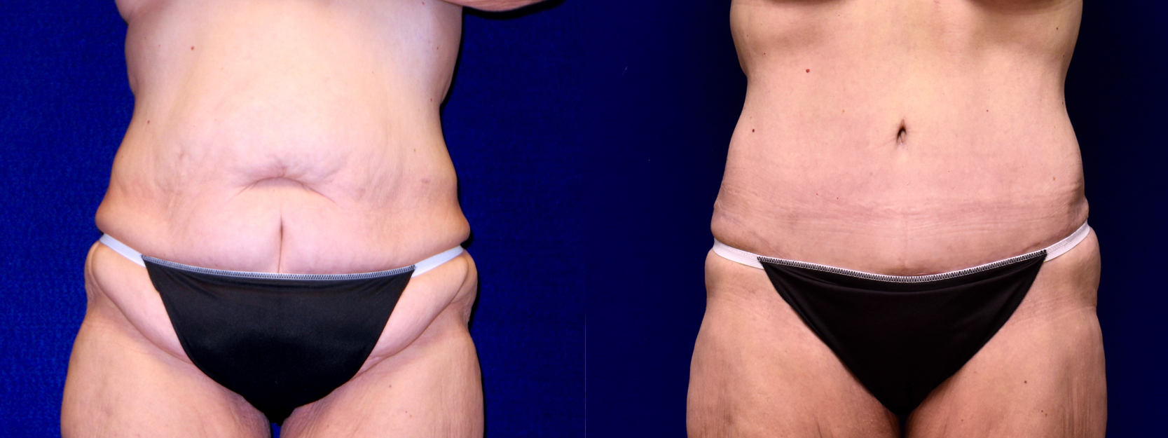 Frontal View - Extended Tummy Tuck