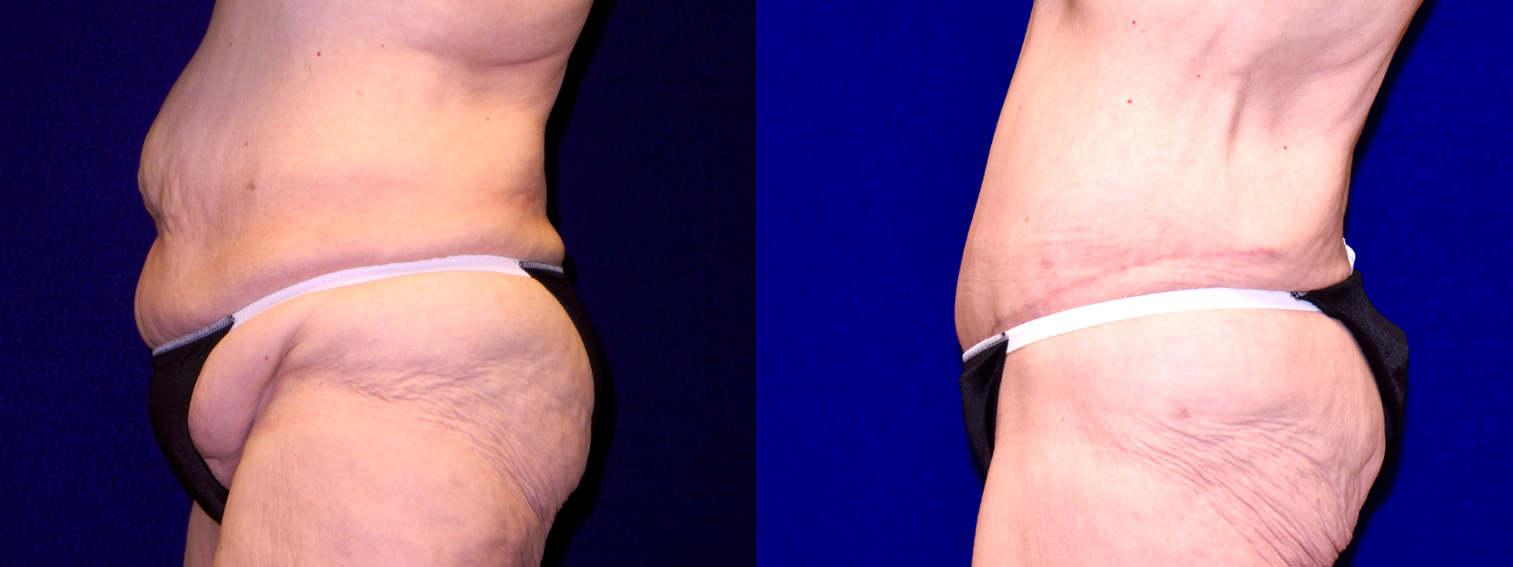 Left Profile View - Extended Tummy Tuck