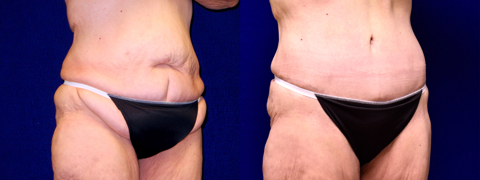 Right 3/4 View - Extended Tummy Tuck