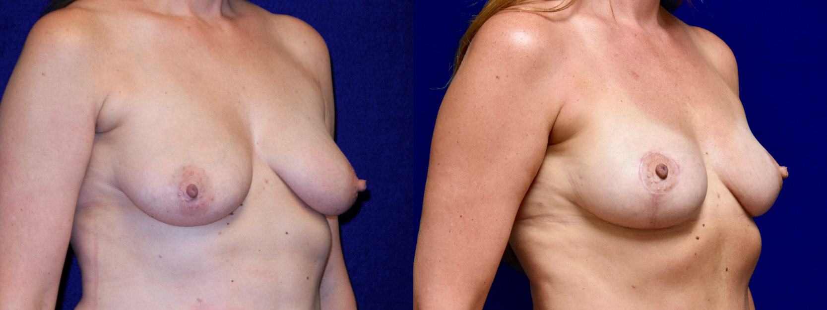 Right 3/4 View - Breast Lift