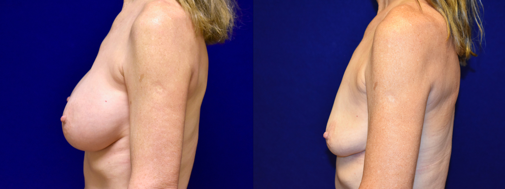 Left Profile View - Breast Implant Removal