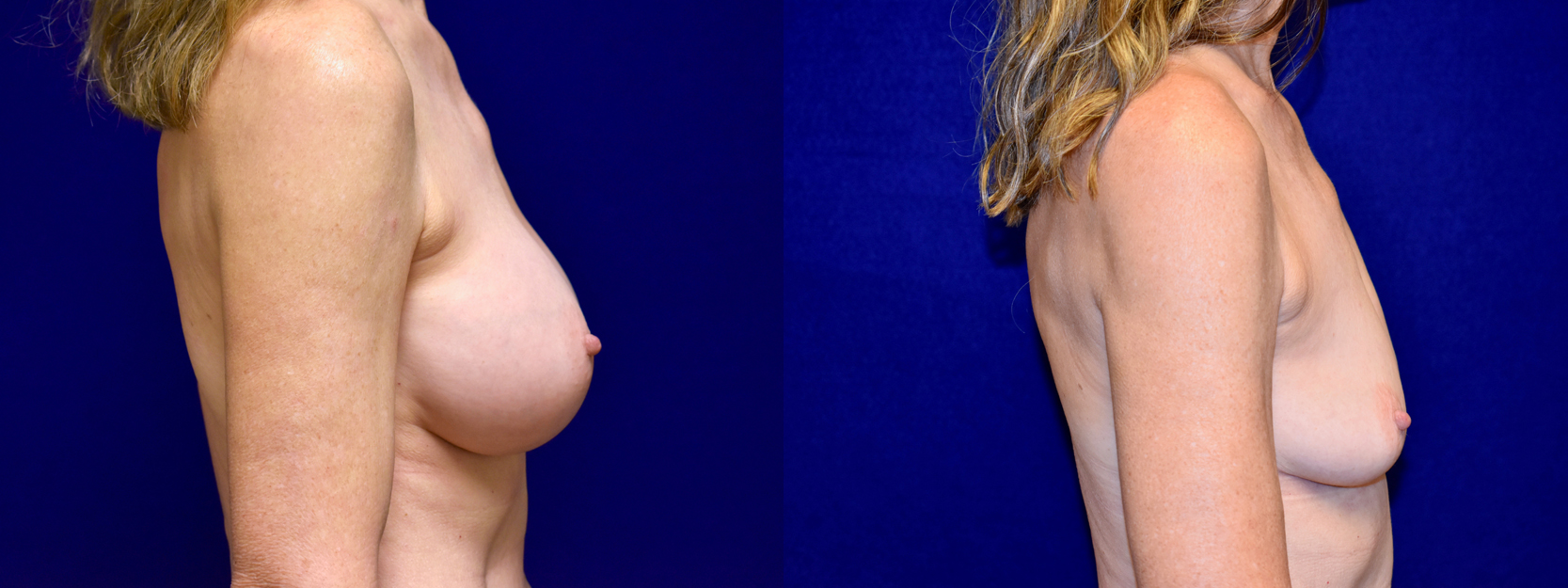 Right Profile View - Breast Implant Removal