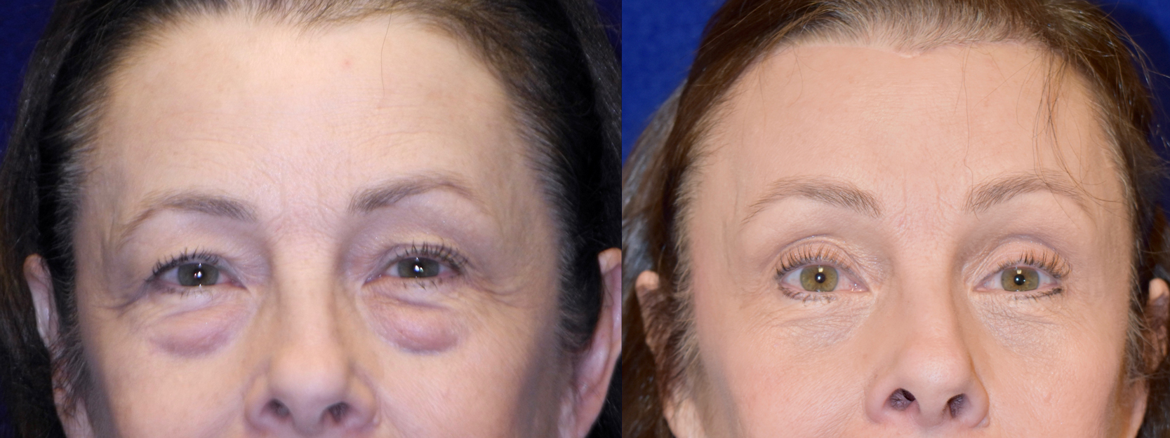Frontal View - Browlift with Upper and Lower Blepharoplasty