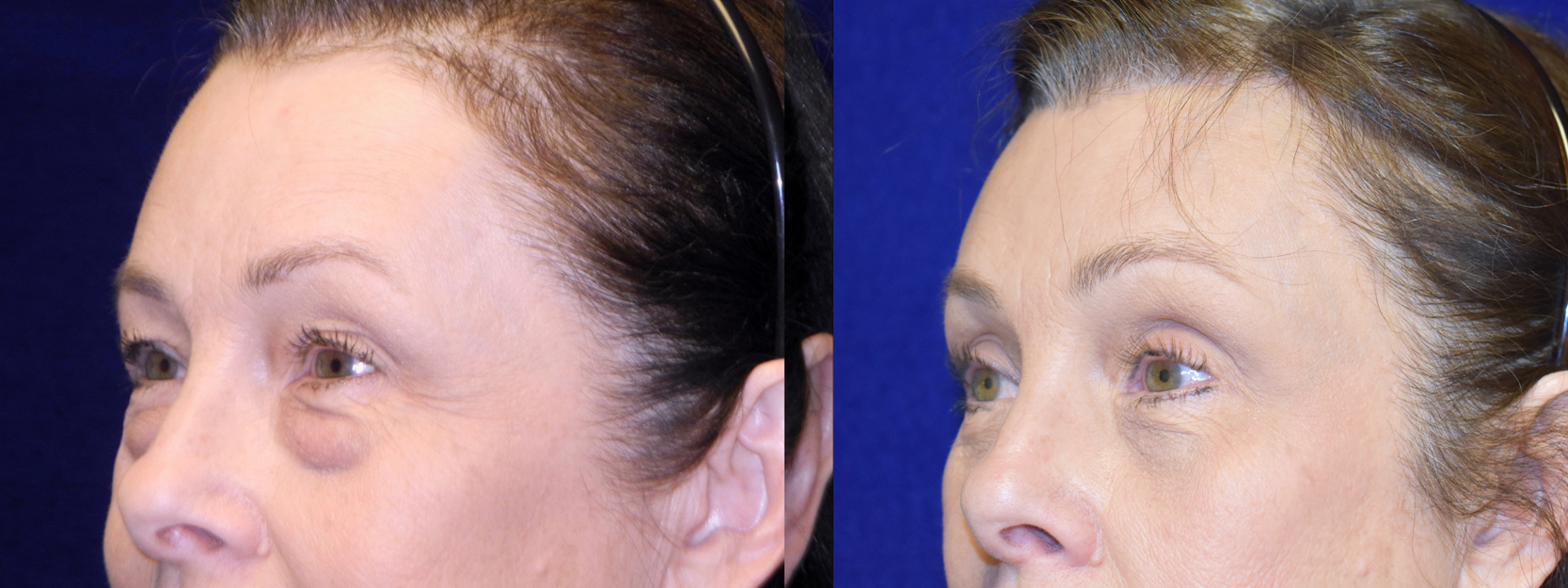 Left 3/4 View - Browlift with Upper and Lower Blepharoplasty