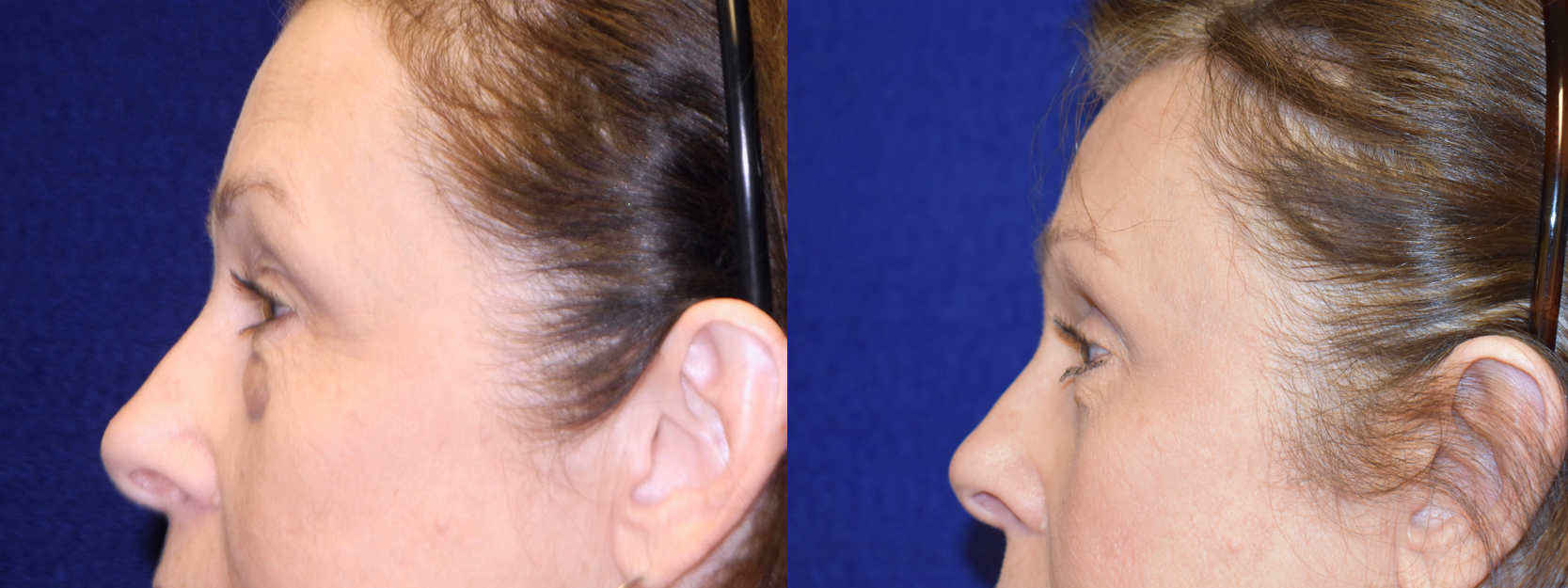 Left Profile View - Browlift with Upper and Lower Blepharoplasty