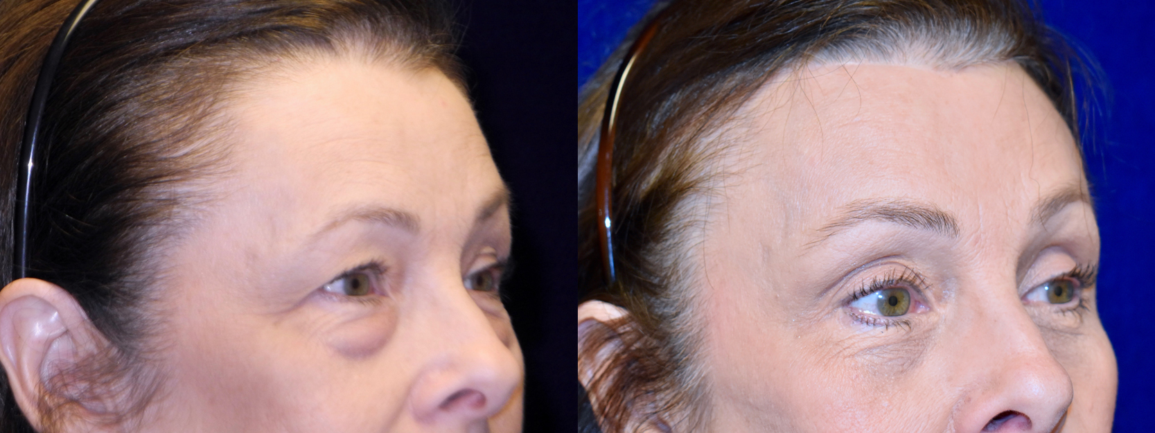 Right 3/4 View - Browlift with Upper and Lower Blepharoplasty