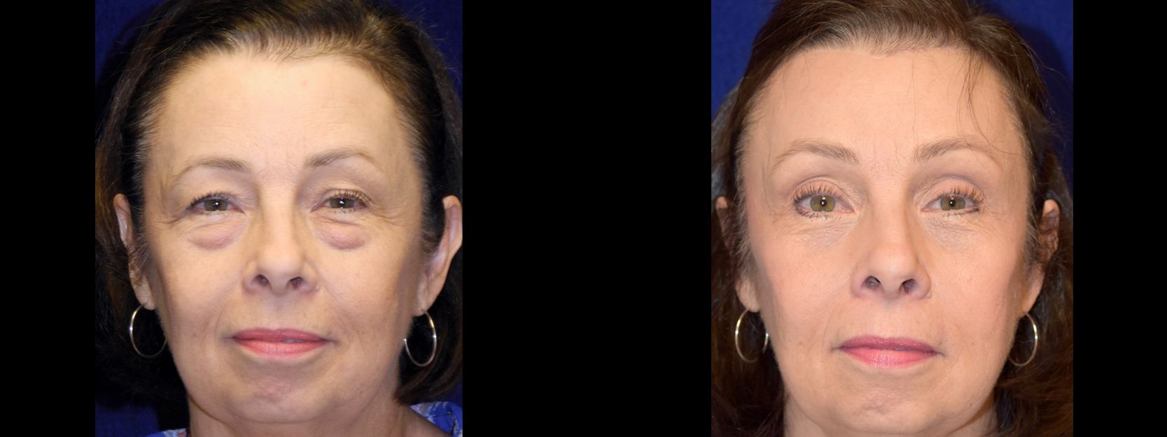 Frontal View Full- Browlift with Upper and Lower Blepharoplasty