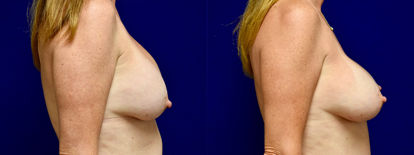 Right Profile View - Breast Implant Revision