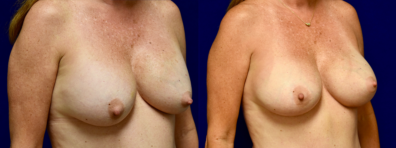 Right 3/4 View - Breast Implant Revision