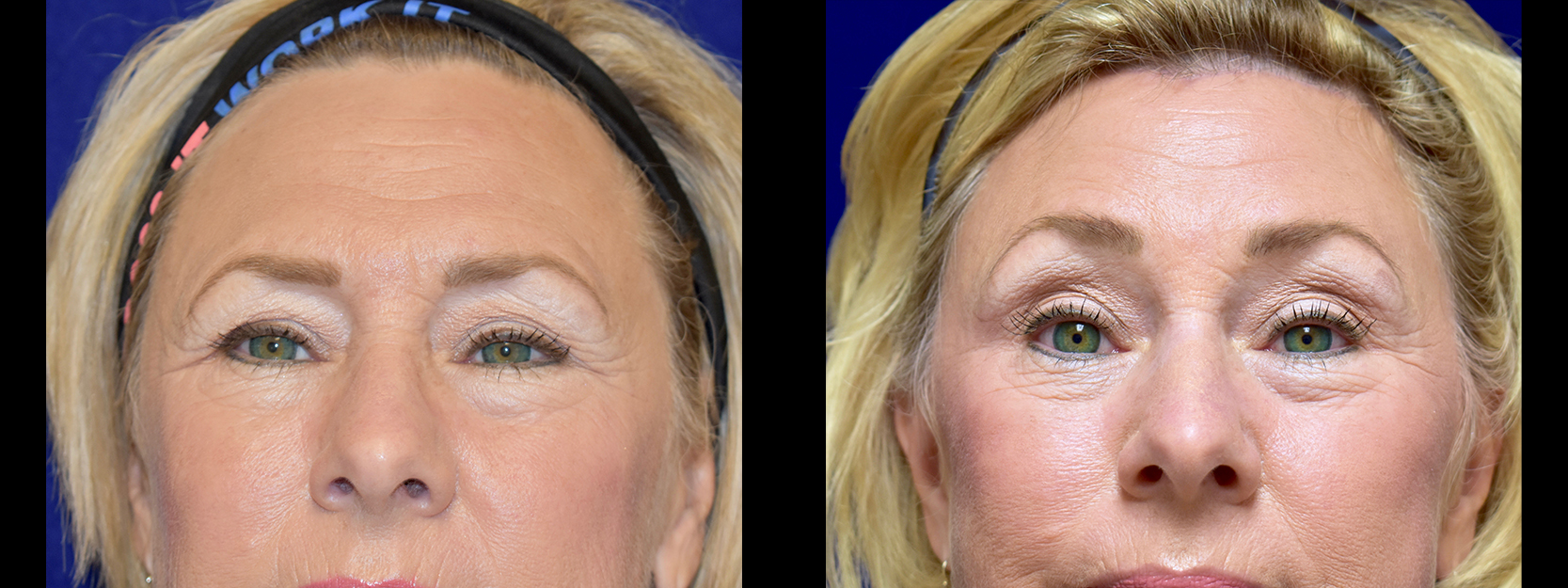 Frontal View - Browlift with Upper and Lower Eyelid Surgery
