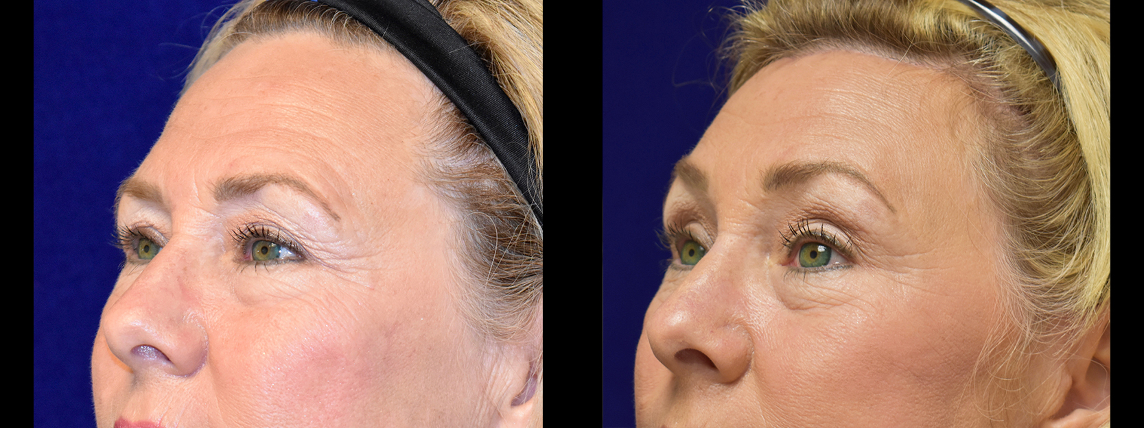 Left 3/4 View - Browlift with Upper and Lower Eyelid Surgery