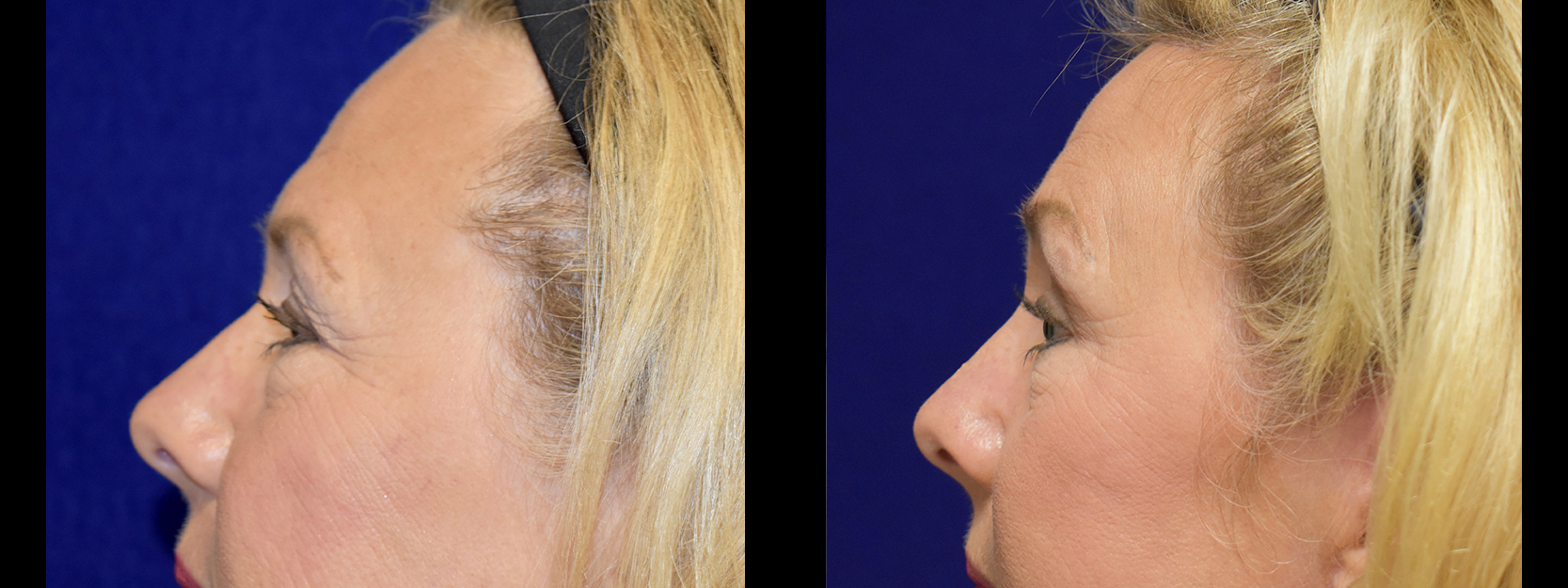 Left Profile View - Browlift with Upper and Lower Eyelid Surgery