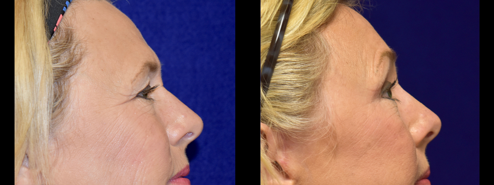 Right Profile View - Browlift with Upper and Lower Eyelid Surgery