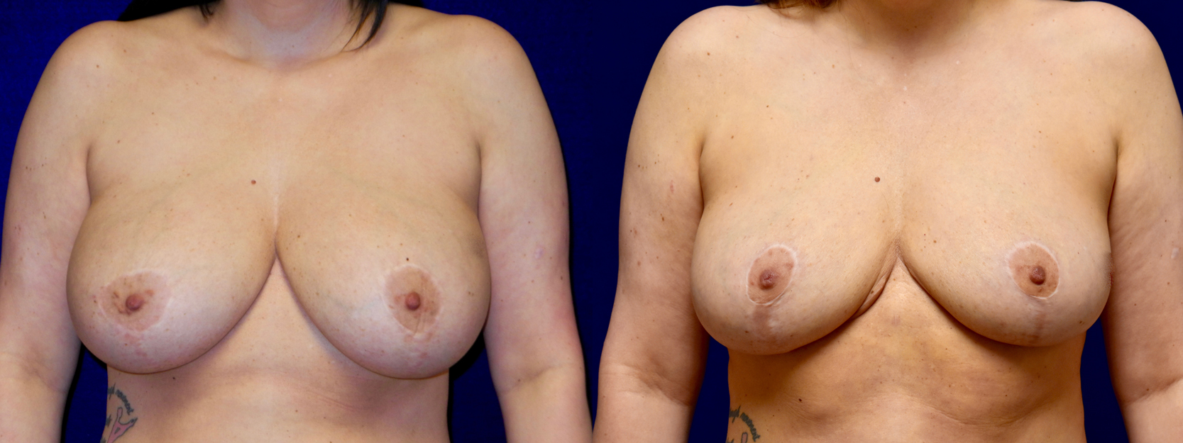 Frontal View - Breast Implant Removal with Reduction and Lift